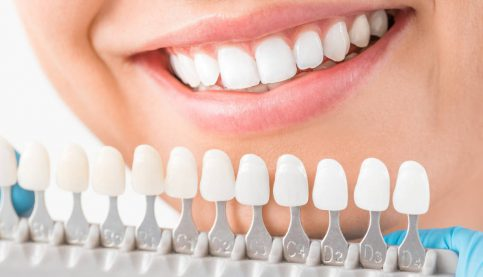 Beautiful smile and white teeth of a young woman. Matching the shades of the implants or the process of teeth whitening.